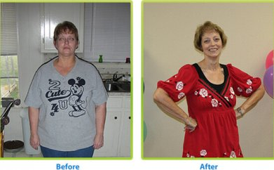 Before and after weight loss surgery in Dallas, TX - Bariatric Solutions